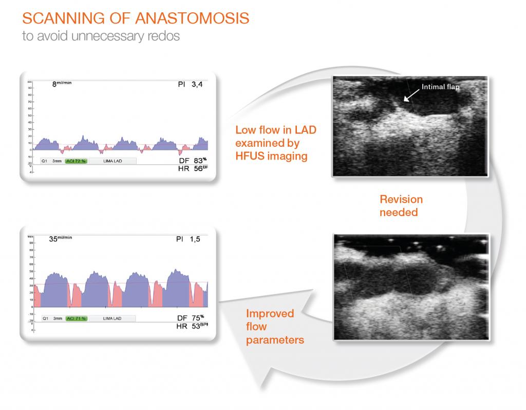 Grafico impatto flussimetria su decisione anastomia