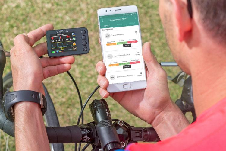 Cnoga Mtx abbinato a uno smartphone