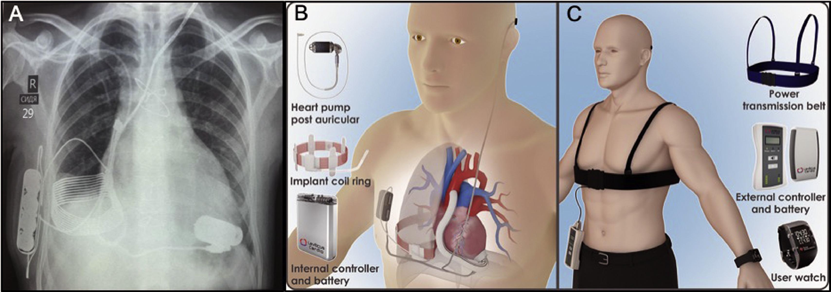 cuore artificiale con alimentazione wireless
